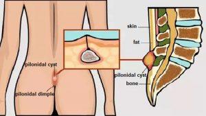 انواع کیست مویی و عوامل تشدید کننده و روش های پیشگیری