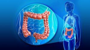 آیا بیماری بواسیر یا هموروئید باعث ایجاد سرطان مقعد می شود؟