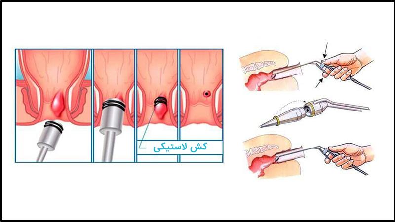 مزایای درمان بواسیر یا هموروئید با رابربند