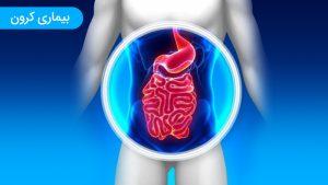 انواع بیماری کرون یا التهاب روده و علائم تشخیص قطعی کرون