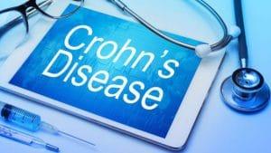 درمان کرون با روش های جراحی و خانگی و مراقبت های بعد از عمل