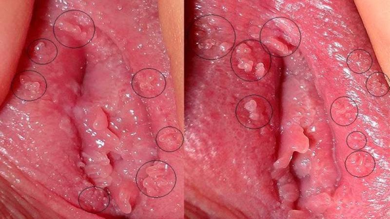 تشخیص زگیل تناسلی و واژن در مردان و زنان