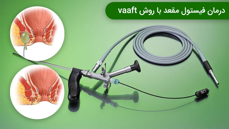 درمان فیستول باVAAFT