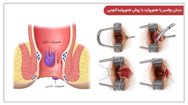 هموروئیدکتومی یا جراحی هموروئید