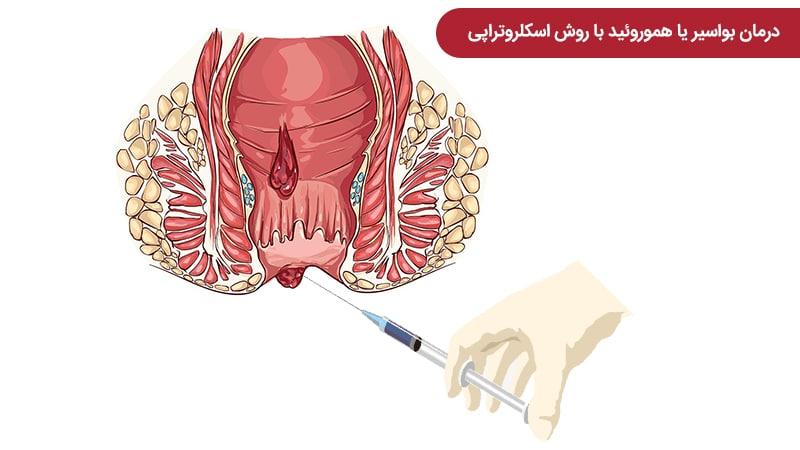 درمان بواسیر یا هموروئید با روش اسکلروتراپی