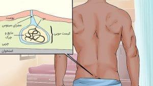 علائم کیست مویی یا سینوس پیلونیدال و معاینه و تشخیص این بیماری