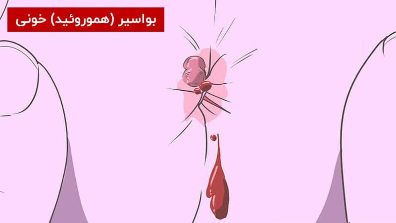 بواسیر خونی