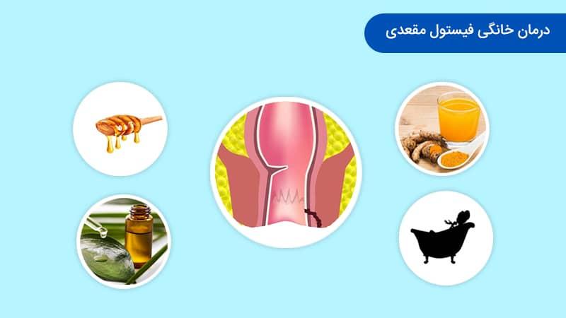 درمان خانگی فیستول