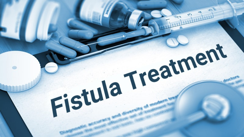 تصویر: http://cliniczarei.com/wp-content/uploads/2019/06/Fistula-treatment-with-medication.jpg