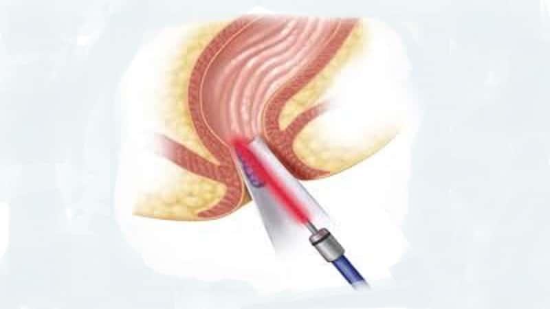 درمان بواسیر خونی
