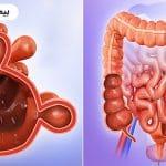 کولون سیگموئید چیست و چه رابطه ای با بیماری دیورتیکولیت دارد ؟