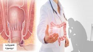 درمان هموروئید خارجی ( ترومبوزه ) و پیشگیری از ابتلا به بواسیر خارجی
