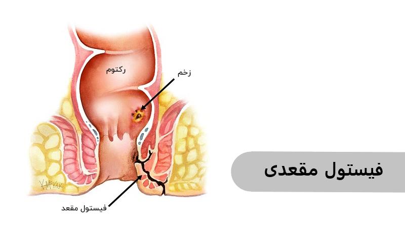 فیستول مقعد موجب خون در مدفوع