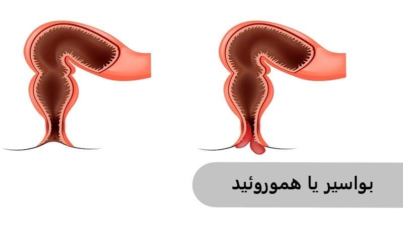 بواسیر یا هموروئید موجب خونریزی مقعد