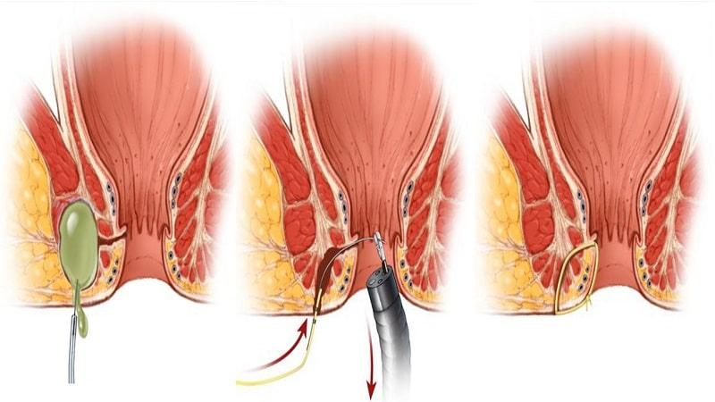 عمل جراحی فیستول مقعدی و مراقبتهای بعد از عمل