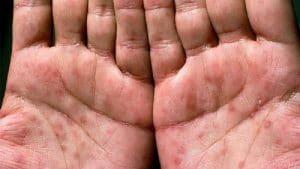 عوارض و مراحل ایجاد بیماری سیفلیس