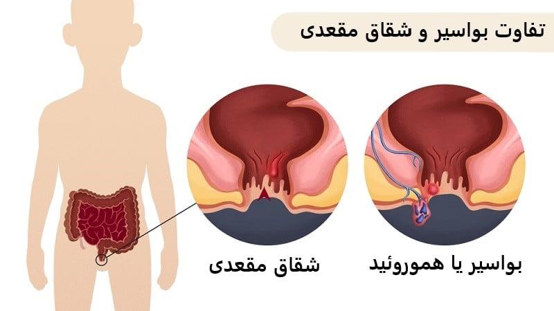 شباهت و تفاوت شقاق و بواسیر یا هموروئید برای تشخیص و درمان مناسب