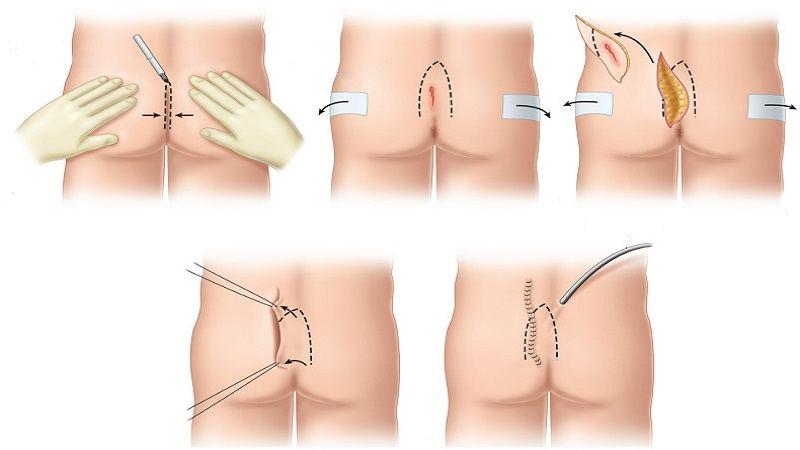تصویر: http://cliniczarei.com/wp-content/uploads/2019/11/Closed-cyst-pilonidal-surgery.jpg