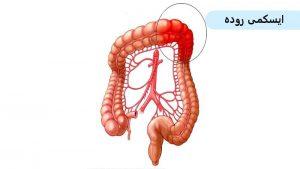 علل ایجاد ایسکمی روده و علائم تشخیص این بیماری