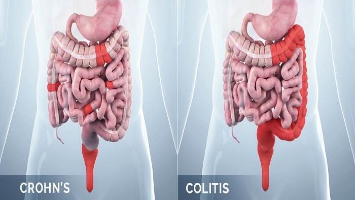 عکس کرون بیماری التهابی روده