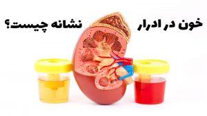علت خون در ادرار یا هماچوری چیست؛ علائم، تشخیص و درمان