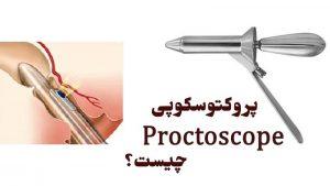 پروکتوسکوپی یا مشاهده رکتوم چیست ؛ تفاوت آن با سیگموئیدوسکوپی و عوارض