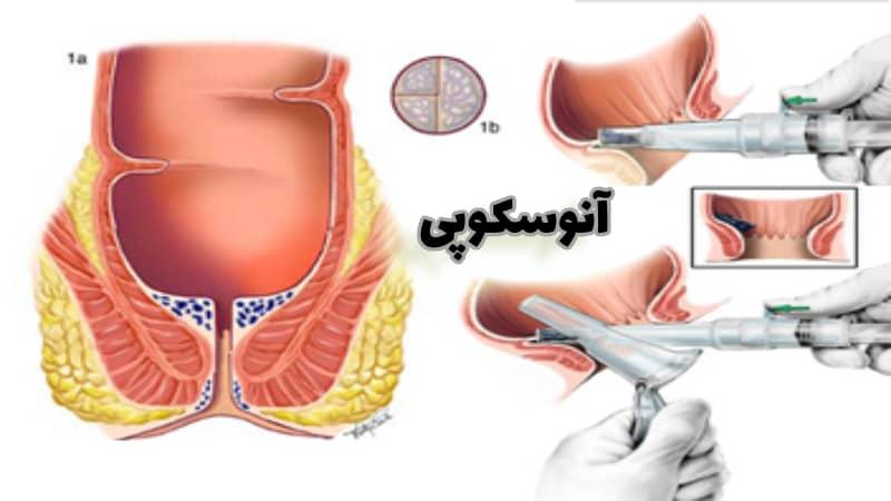 آنوسکوپی یا معاینه مقعدی چیست و چگونه انجام می شود؟