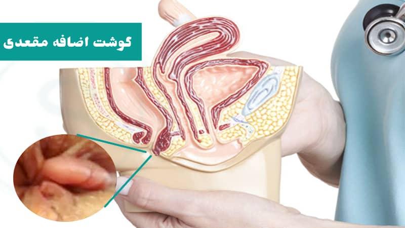 گوشت اضافه مقعدی ؛ درمان با لیزر و علت زائده گوشتی