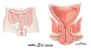 درمان بیرون زدگی مقعد یا روده (پرولاپس رکتوم)؛ مقایسه با بواسیر