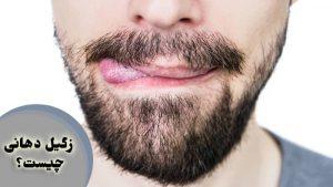 زگیل دهانی ؛ درمان و روشهای انتقال اچ پی وی از راه دهان