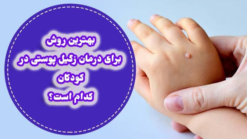 زگیل کودکان (دست، پا، دهان و بدن)؛ درمان، علت و علائم