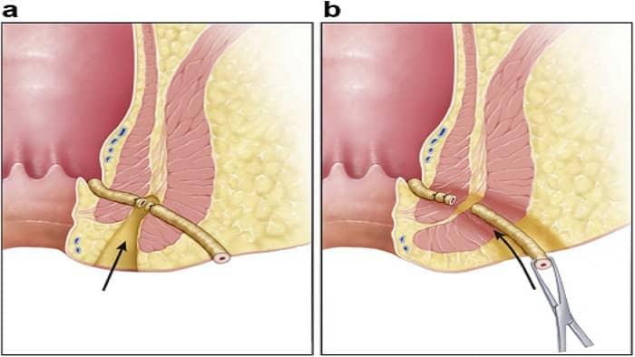 عکس جراحی فیستول به روش لیفت